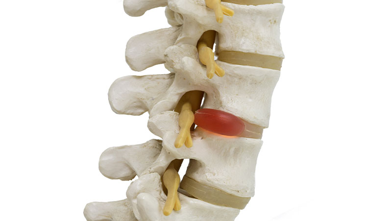 Herniated disc bulging in spinal cord